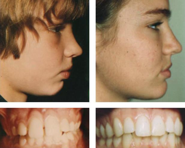 Crooked Teeth Fossil Secrets Meet Tribal Secrets