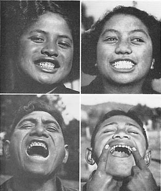 Resultat d'imatges de aboriginal people teeth